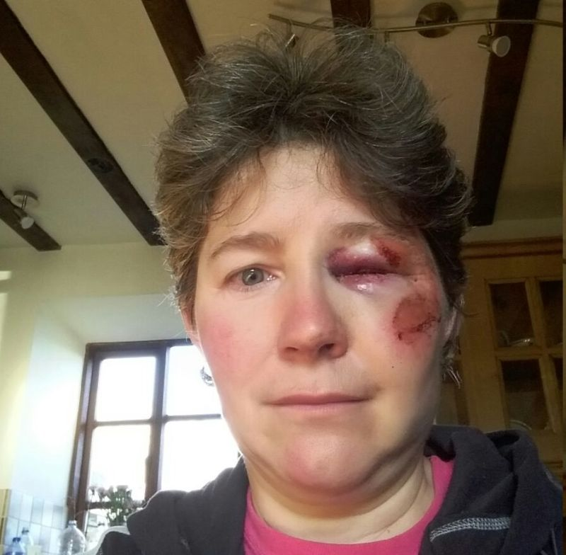 Farmer 'butted and trampled' by cow keen to promote farm safety