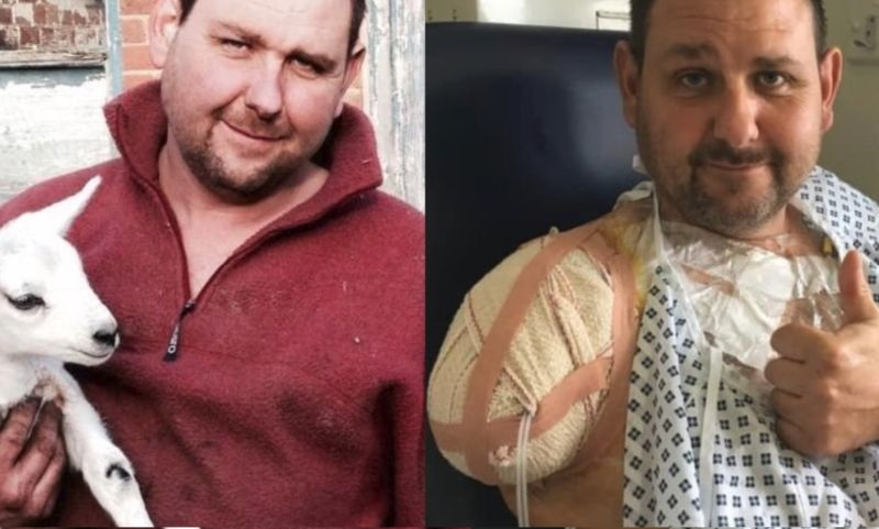 The arm could not be saved despite hours of surgery (Photo: JustGiving/Allie and David Miles)